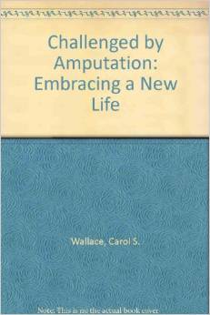 Challened by Amputation: Embracing a New Life